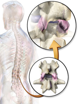 facet joints and back pain