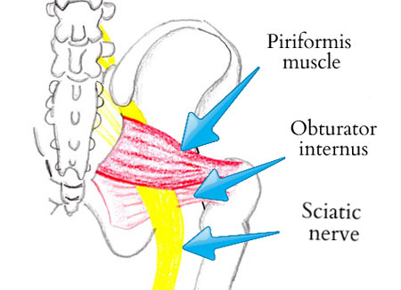 Piriformis Syndrome – Lowbackpainprogram