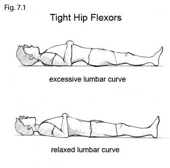 Tight Hip Flexors And Back Pain Lowbackpainprogram