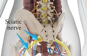 Sciatica is a very common type of radicular pain